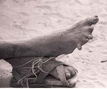 "Feet of a leper, photographed by Candace Scharsu, who writes, ""Deformities are caused by accidents because lepers lose their sense of touch due to nerve damage.  Fingers are caught on fire, cut, stabbed, stubbed, and broken till they're chiseled to nothing; toes are nibbled off by rats as they sleep."""